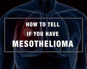 How-to-Tell-if-you-Have-Mesothelioma1-1024x814.jpg